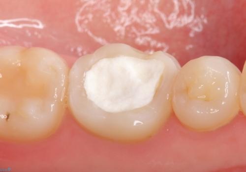 オールセラミッククラウン 他院にて抜歯を提案された歯の治療の治療前