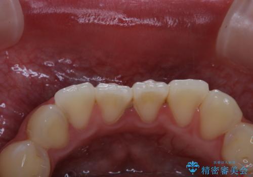 結婚式前の歯のクリーニング PMTCの治療前