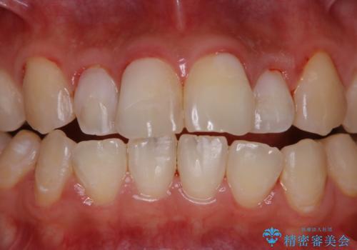 結婚式前の歯のクリーニング PMTCの治療後