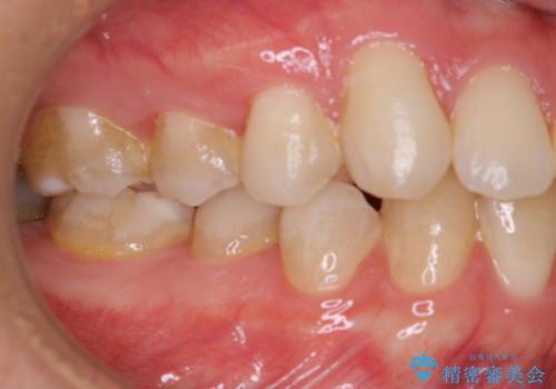PMTC 歯のお掃除の治療前