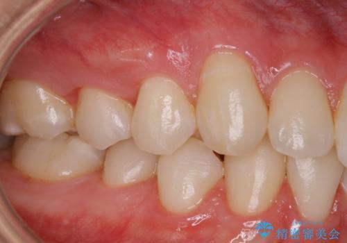 PMTC 歯のお掃除の治療後
