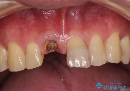 前歯インプラントの症例 治療前