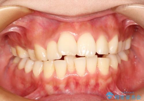前歯で咬めない・出っ歯 抜歯矯正で整った上下の前歯への症例 治療前