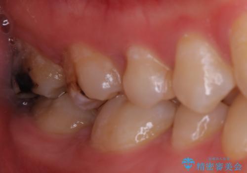 広範囲にわたる虫歯をセラミックで治療の治療前