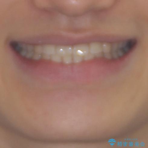 深い咬み合わせとデコボコ ワイヤー矯正で短期治療の治療後(顔貌)