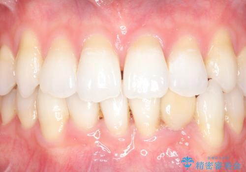オールセラミッククラウン 矯正で綺麗に並ばなかった前歯の補綴の治療前
