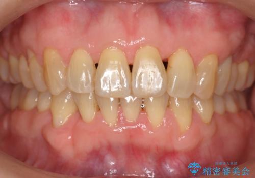 前歯のがたつき インビザラインで抜歯矯正の治療後