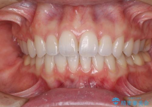 深い咬み合わせと奥歯のむし歯 総合歯科治療の症例 治療後