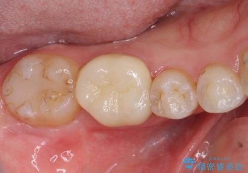 深い咬み合わせと奥歯のむし歯 総合歯科治療の治療後