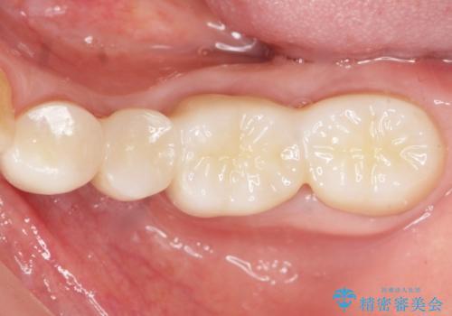どうしても抜歯したくない 歯根分割術・骨外科手術で歯を残す 50代女性の症例 治療後