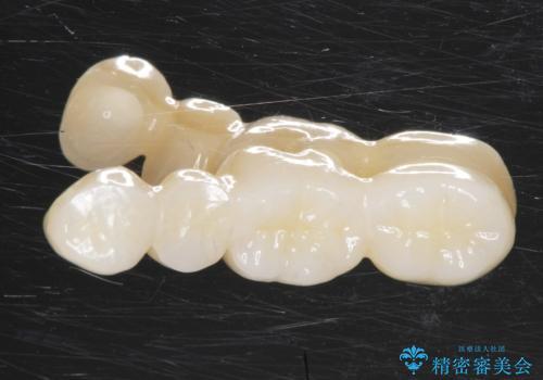 どうしても抜歯したくない 歯根分割術・骨外科手術で歯を残す 50代女性の治療中