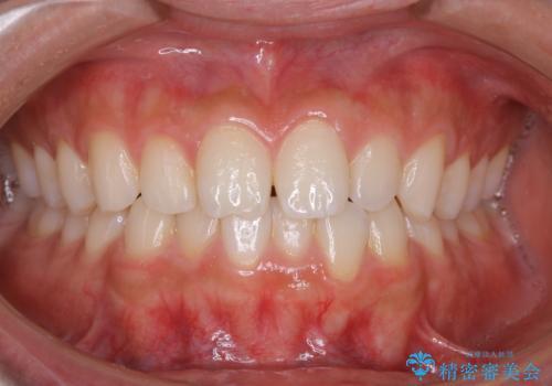 PMTCで前歯のクリーニングの治療前