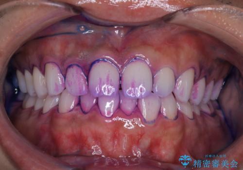 PMTCで前歯のクリーニングの治療中