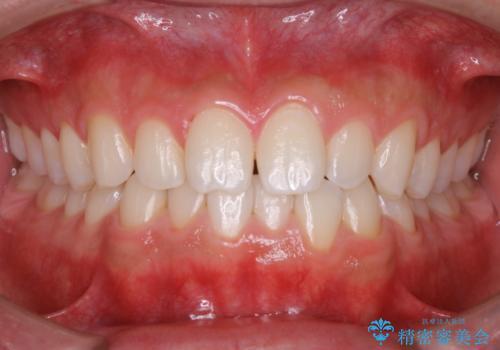 PMTCで前歯のクリーニングの治療後