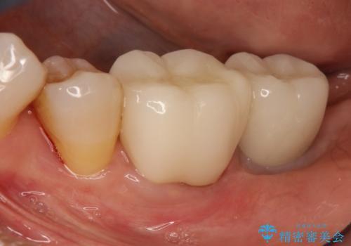 失った歯のインプラントでの咬合回復の症例 治療後