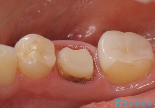 オールセラミッククラウン 他院にて抜歯を勧められた歯の治療の治療中