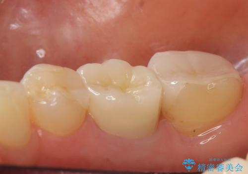 オールセラミッククラウン 他院にて抜歯を勧められた歯の治療の治療後