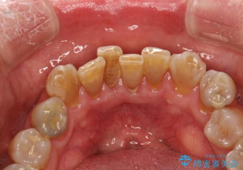 歯周外科前のクリーニングの治療前