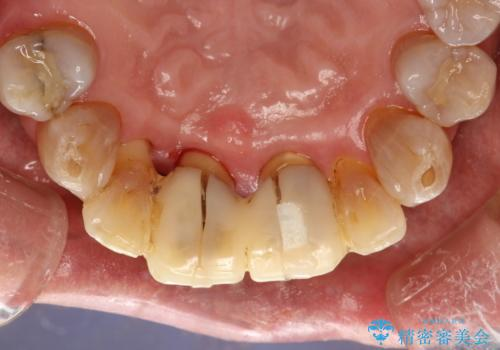 歯周外科前のクリーニングの治療後