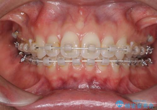 深い咬み合わせと奥歯のむし歯 総合歯科治療の治療中