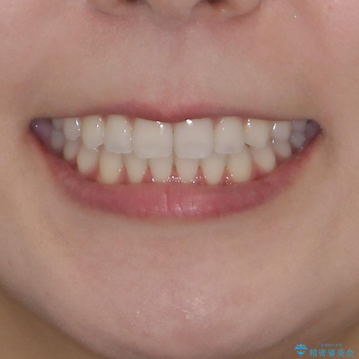 前歯のオープンバイトを治したい インビザラインでの矯正治療の治療後(顔貌)