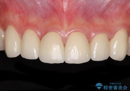 継ぎ接ぎだらけの前歯を綺麗にしたい 前歯のオールセラミックの治療後