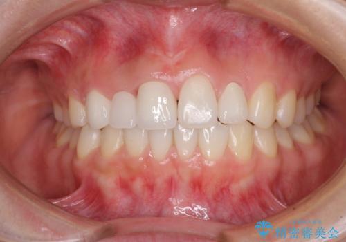 欠損歯と矮小歯 矯正治療と前歯のセラミック治療の症例 治療後