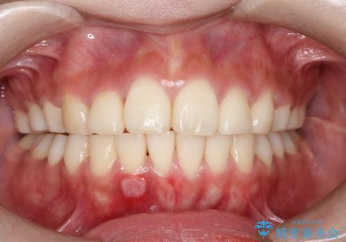 前歯で咬めない・出っ歯 抜歯矯正で整った上下の前歯への症例 治療後