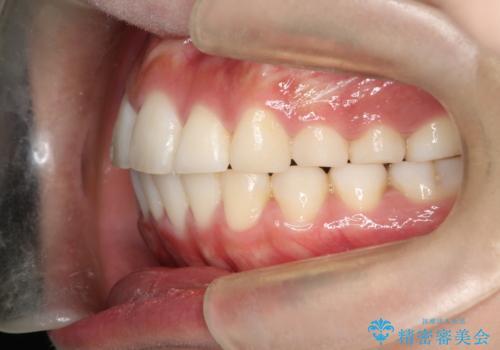 前歯で咬めない・出っ歯 抜歯矯正で整った上下の前歯への治療後