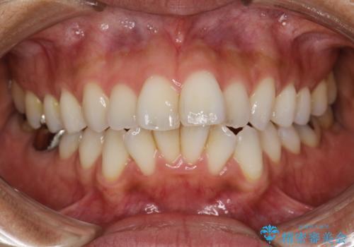 PMTCで歯石やステインの除去の治療前