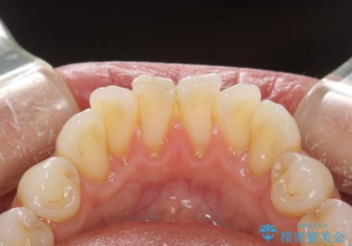 歯科衛生士によるPMTCで着色落としの治療前