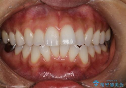 歯科衛生士によるPMTCで着色落としの治療後