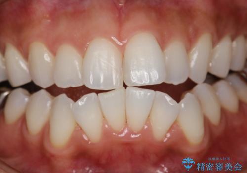 PMTCで歯石やステインの除去の治療後