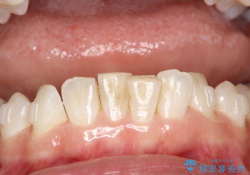 下の歯の黄ばみの症例 治療前