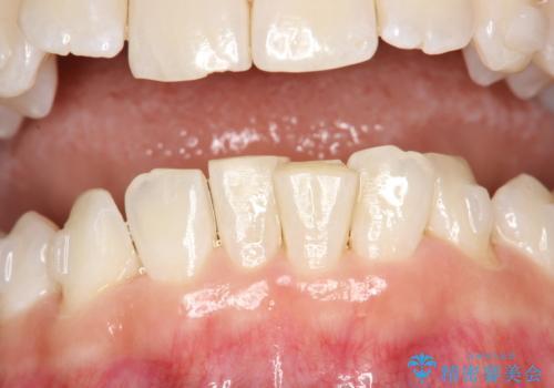 下の歯の黄ばみの症例 治療後