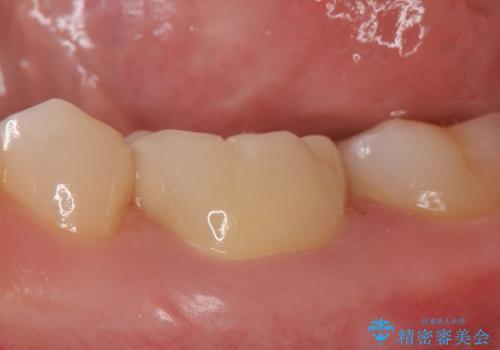 オールセラミッククラウン 他院にて抜歯を提案された歯の治療の治療後