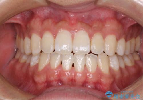 下顎前歯と上顎の部分矯正の症例 治療後
