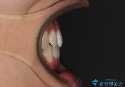 下顎前歯と上顎の部分矯正の治療後