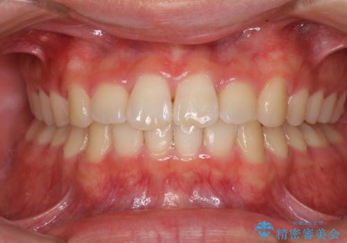 深い咬み合わせとデコボコ ワイヤー矯正で短期治療の症例 治療後