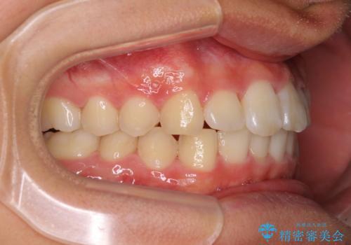 深い咬み合わせとデコボコ ワイヤー矯正で短期治療の治療後