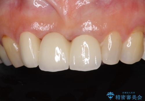 折れてしまった前歯 オールセラミックブリッジで自然な口元にの治療後