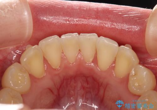 インビザライン矯正治療が終わり、アタッチメント除去と合わせて歯のクリーニングの治療前