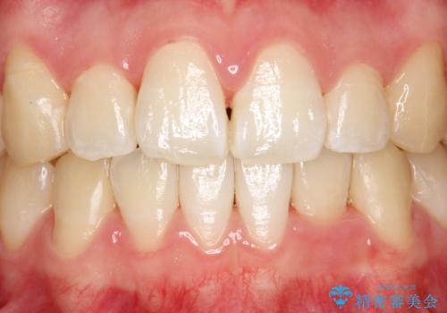 インビザライン矯正治療が終わり、アタッチメント除去と合わせて歯のクリーニングの治療後