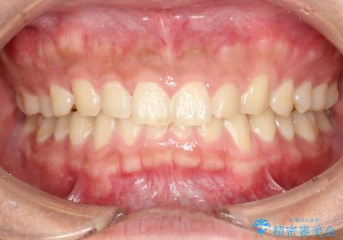 歯科衛生士によるクリーニング PMTCの治療前