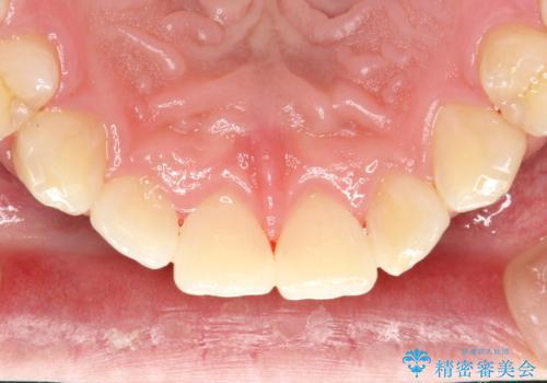 歯科衛生士によるクリーニング PMTCの治療後