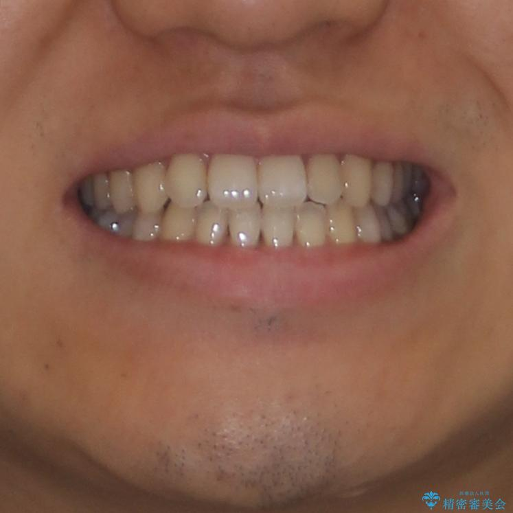 下顎前歯と上顎の部分矯正の治療後(顔貌)