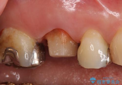オールセラミッククラウン 銀歯と歯茎の隙間が気になるの治療中