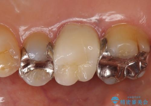 オールセラミッククラウン 銀歯と歯茎の隙間が気になるの治療後