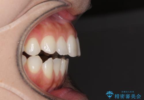 前歯のオープンバイトを治したい インビザラインでの矯正治療の治療前