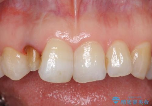 オールセラミッククラウン 変色が気になる前歯の治療の治療中